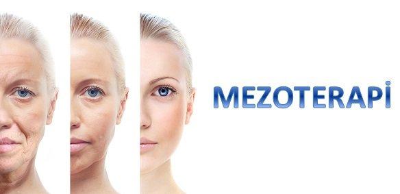 mezoterapi nedir - MEZOTERAPİ NEDİR?